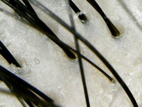 インフェノム頭皮