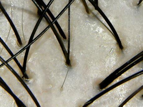 メデルシャンプー頭皮