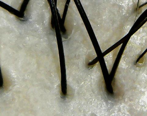 オルモニカ頭皮