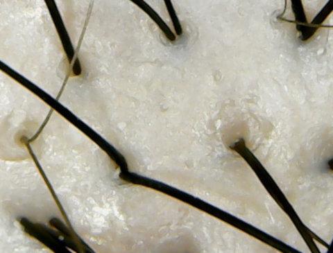 ベーネプレミアムブルーリア頭皮