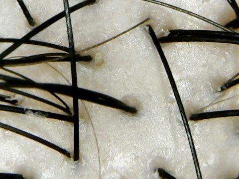 ママバターシャンプー頭皮