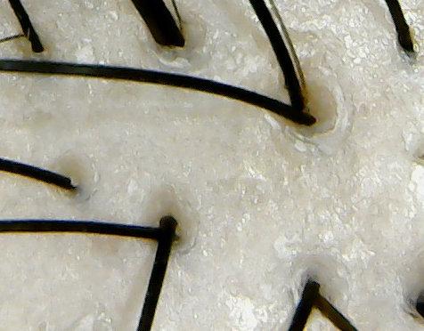 amishe頭皮