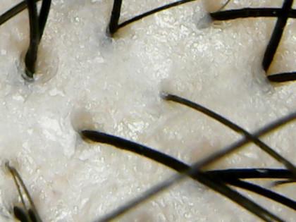 ココンシュペール頭皮