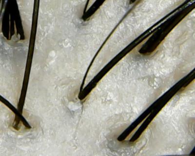 ルフェイルシャンプー頭皮