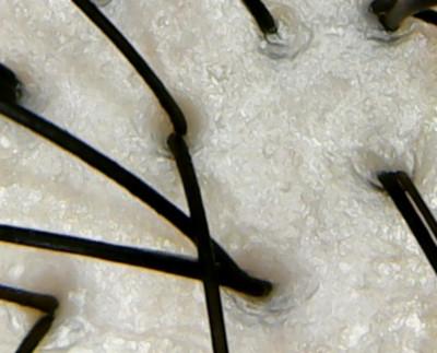 サンナホル頭皮