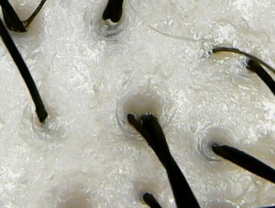 アミノメイソン頭皮