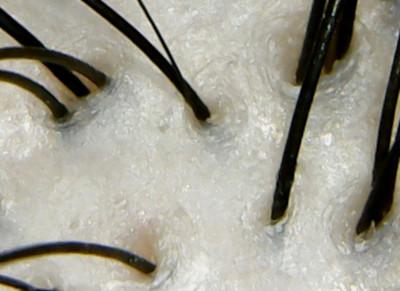 ダイアンパーフェクトビューティ頭皮