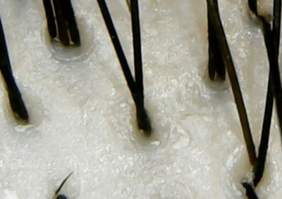 ビオロジー頭皮