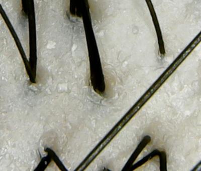 ベルーガ頭皮