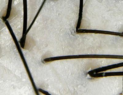 ボタニスト頭皮