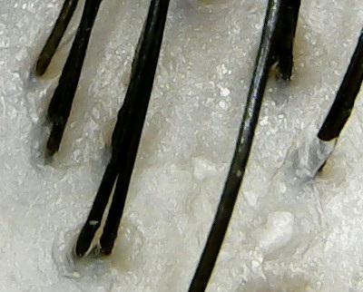 ダイアンボタニカル頭皮