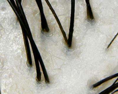 ノルバイタルプレミアム頭皮