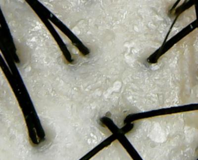 ネウマシャンプー頭皮