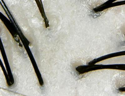 アハロバター頭皮