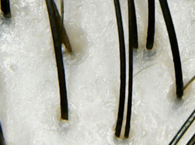 アミナス頭皮