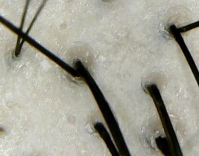 アロマキフィオーガニック頭皮