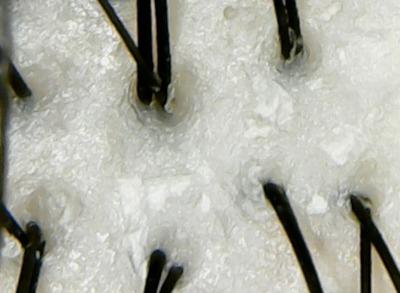 ダイアンボヌール頭皮