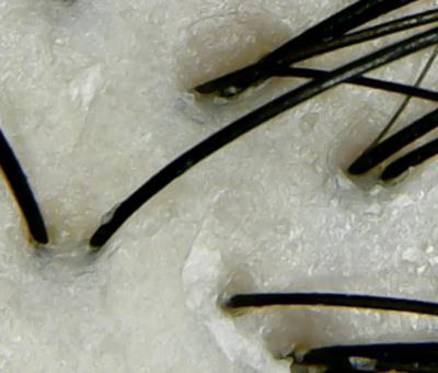 ラックスバイオフュージョン頭皮