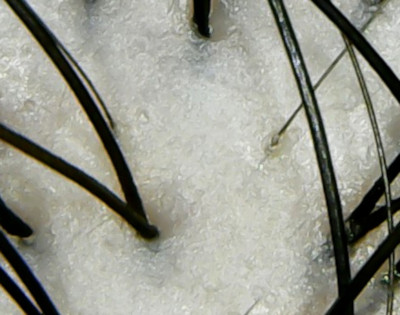 オハナマハロシャンプー頭皮