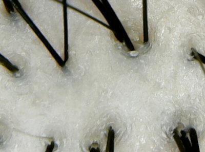ジュレームオールノンシリコン頭皮