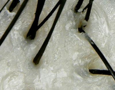 プレディアファンゴ頭皮