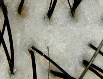 大島椿オイルシャンプー頭皮