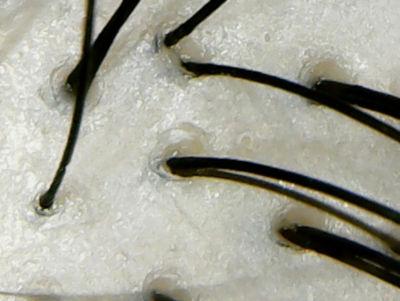 ハワイアンレインボービーズ頭皮
