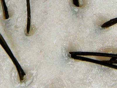 エヌドットシアシャンプー頭皮