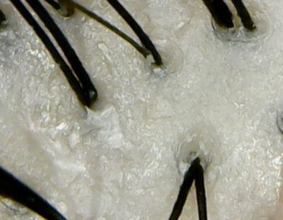 バタフライピー頭皮