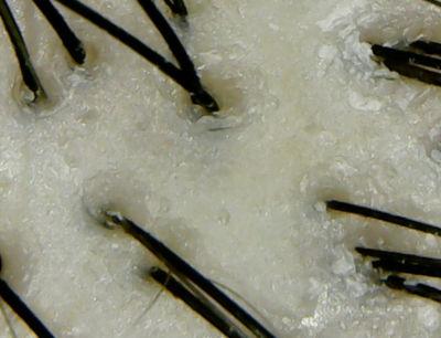 ロクシタンシャンプー頭皮