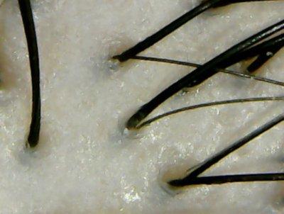 メニモ頭皮