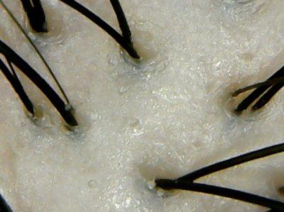 ヘアザプロテイン頭皮