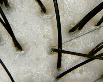 ジュレームシュープリーム頭皮