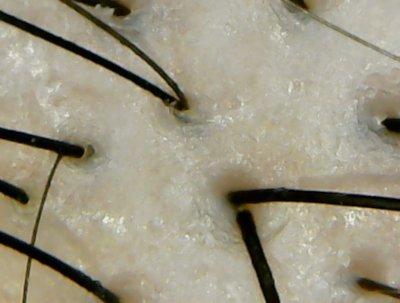 ピアンテフェリーチ頭皮