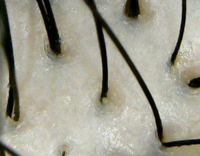 sugami頭皮